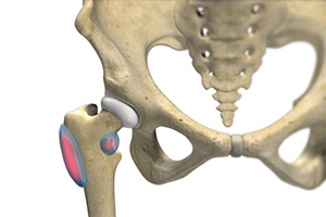 Hip Bursitis