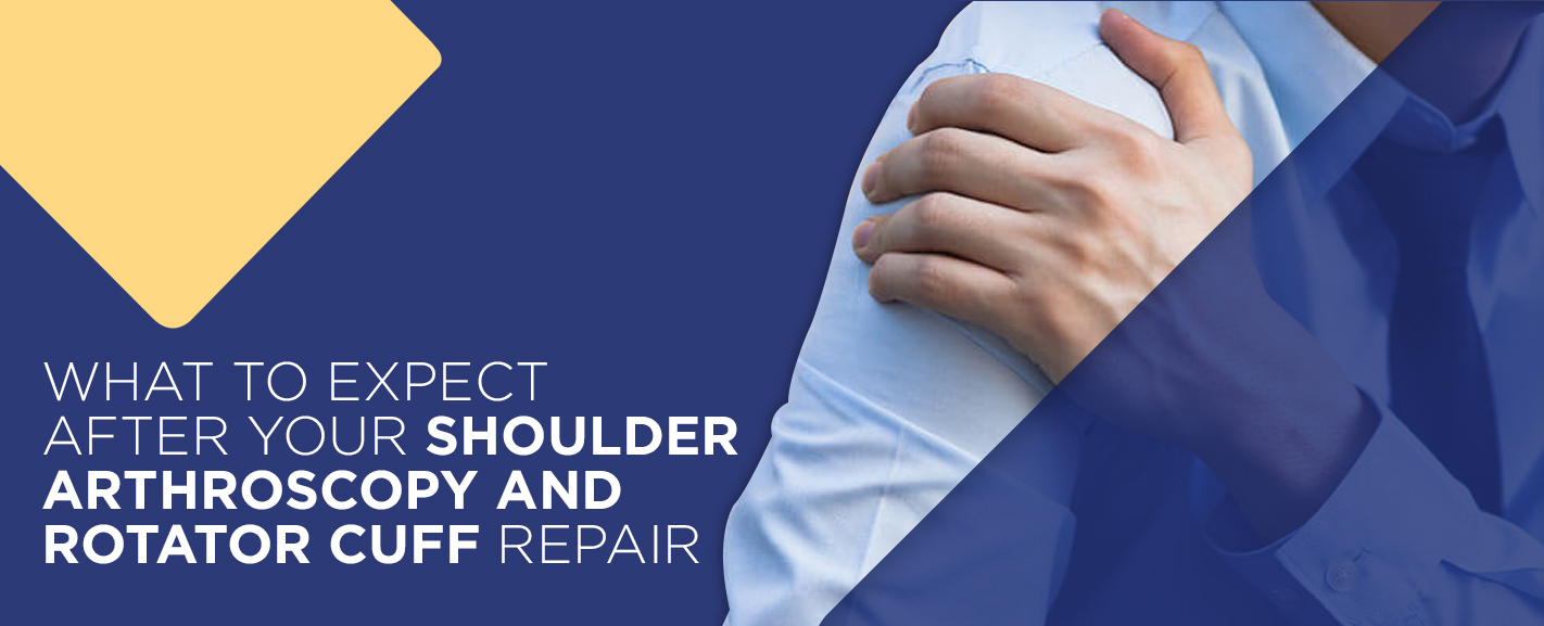 What to expect after your shoulder arthroscopy