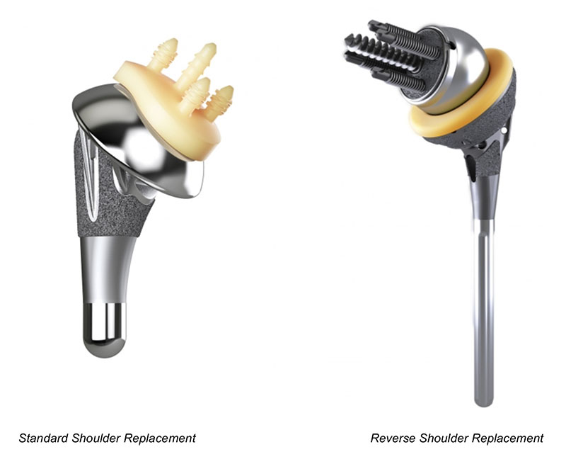 standard shoulder replacement vs. reverse shoulder replacement